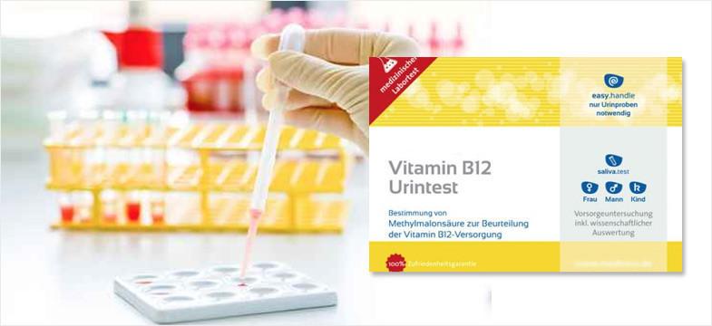 Deficiência de vitamina B12 – Análises de urina